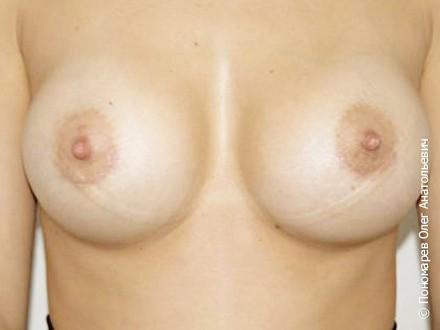 Увеличение груди Субареолярное увеличение молочных желез анатомическими имплантами V=300 см3 после операции