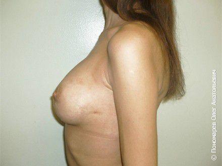 Увеличение груди Субареолярное увеличение груди анатомическими имплантами V=300 см3 после операции