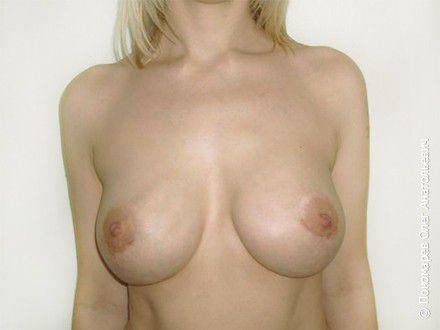 Увеличение груди 3 операции на молочных железах в анамнезе. Репротезирование молочных желёз после операции