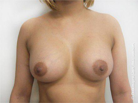 Увеличение груди Асимметрия молочных желёз, птоз. Увеличение трансаксилярным (подмышечным) доступом. Анатомические импаланты V=295 см3, 330 см3 после операции