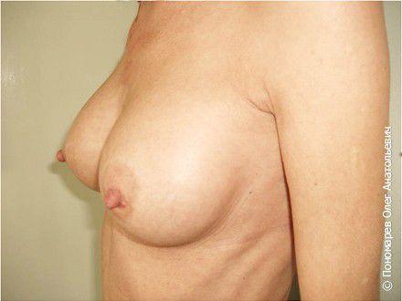 Увеличение груди Трансаксилярное увеличение груди анатомическими имплантами V=295 см3 после операции