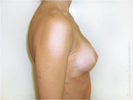 Увеличение груди Трансаксилярное увеличение груди анатомическими имплантами V=250 см3 после операции