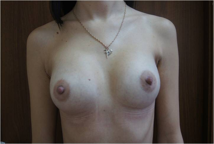 Увеличение груди Увеличение молочных желёз анатомическими имплантами V=290 см3 после операции
