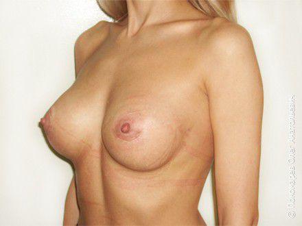 Увеличение груди Увеличение груди анатомическими имплантами V=250 см3 после операции