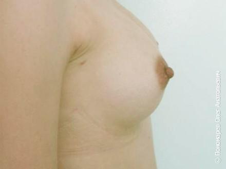Увеличение груди Подмышечное увеличение молочных желёз. Анатомические импланты V=250 см3 после операции