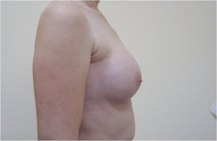 Увеличение груди Увеличение груди круглыми имплантами, V=220 см3 после операции