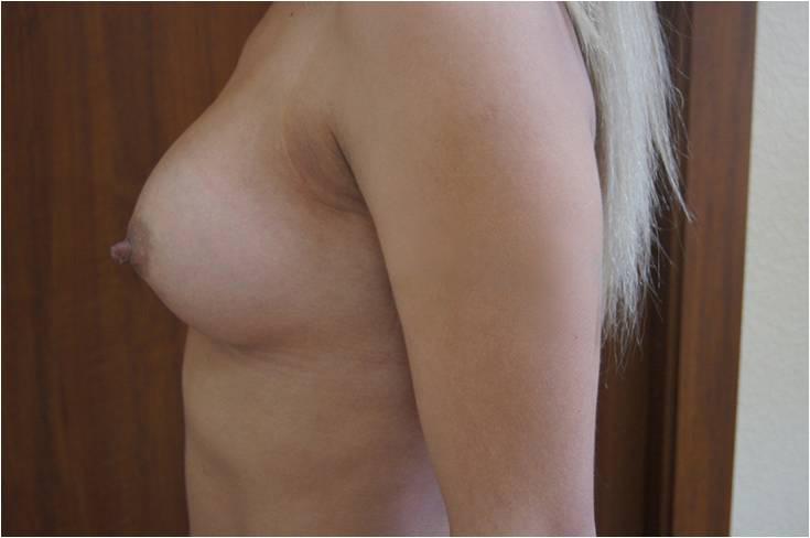 Увеличение груди Увеличение молочных желёз анатомическими имплантами V=260 см3, 280 см3 после операции