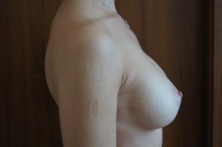 Через 9 месяцев после операции
