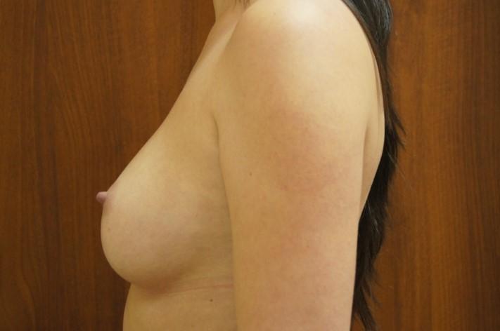 Через 11 месяцев после операции