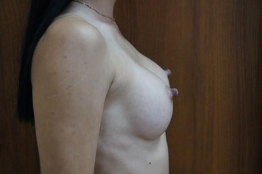 Через 3 месяца после операции