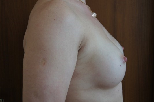 Через 1 месяц после операции